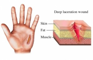 lacerations - american football injuries